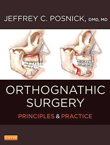 Orthognathic Surgery - 2 Volume Set: Principles and Practice, 1e: Posnick DMD MD FRCS(C) FACS, ...