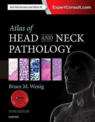 Atlas of Head and Neck Pathology, 3e (ATLAS OF SURGICAL PATHOLOGY): Wenig MD, Bruce M.