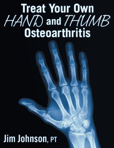 Treat Your Own Hand and Thumb Osteoarthritis: Johnson, Jim