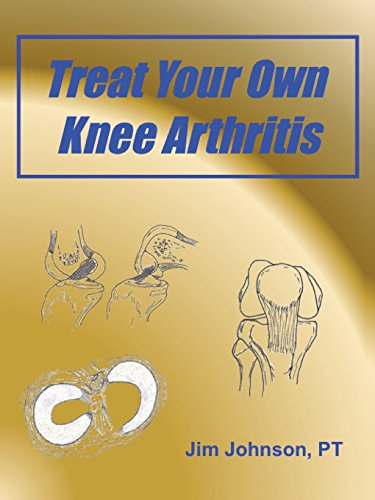 Treat Your Own Knee Arthritis: Jim Johnson PT