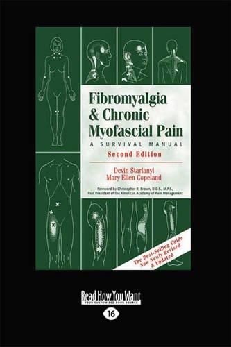 9781459628861: Fibromyalgia: Second Edition