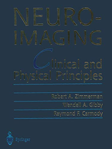 9781461270256: Neuroimaging: Clinical and Physical Principles