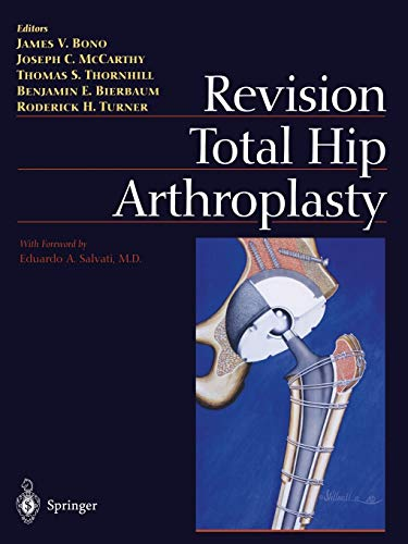 Revision Total Hip Arthroplasty: James V. Bono