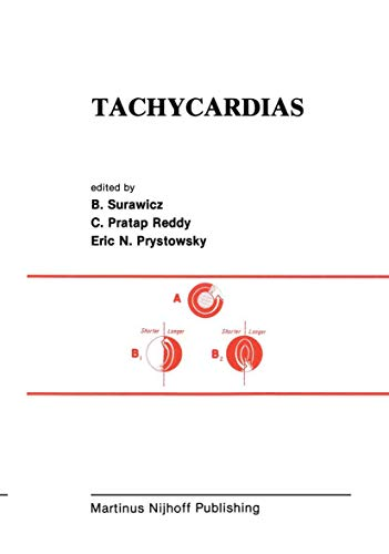 9781461297871: Tachycardias (Developments in Cardiovascular Medicine)