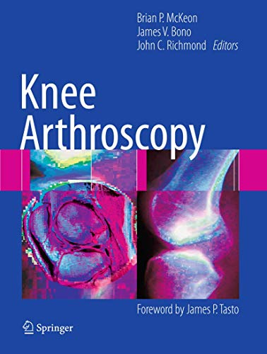 Knee Arthroscopy: Brian McKeon (editor),