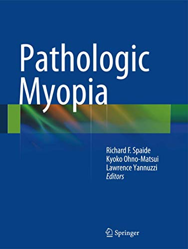 Pathologic Myopia