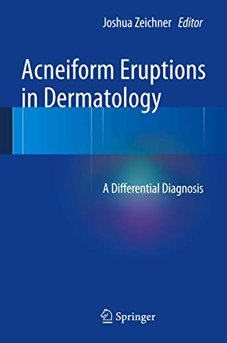 9781461483434: Acneiform Eruptions in Dermatology: A Differential Diagnosis