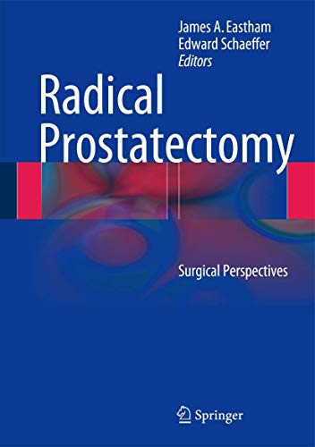 9781461486923: Radical Prostatectomy: Surgical Perspectives
