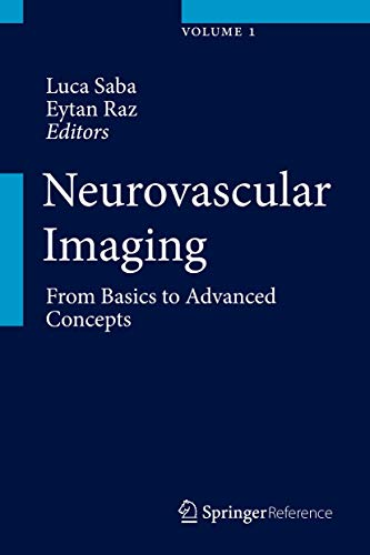 9781461490289: Neurovascular Imaging: From Basics to Advanced Concepts