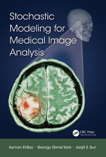 9781466599079: Stochastic Modeling for Medical Image Analysis