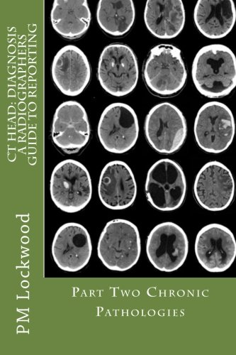 9781467924023: CT HEAD: DIAGNOSIS A Radiographers Guide To Reporting Part 2 Chronic Pathologies: Part 2 Chronic Pathologies