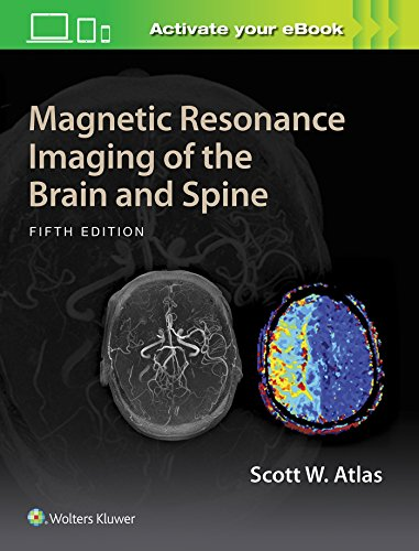 Magnetic Resonance Imaging of the Brain and Spine (Hardcover): Scott W. Atlas