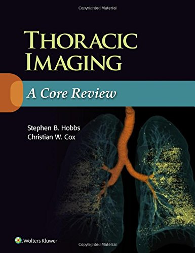 9781469898834: Thoracic Imaging: A Core Review