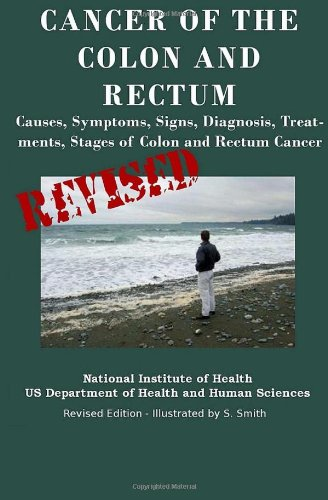 9781475004571: Cancer Of The Colon And Rectum: Causes, Symptoms, Signs, Diagnosis, Treatments, Stages of Colon and Rectum Cancer