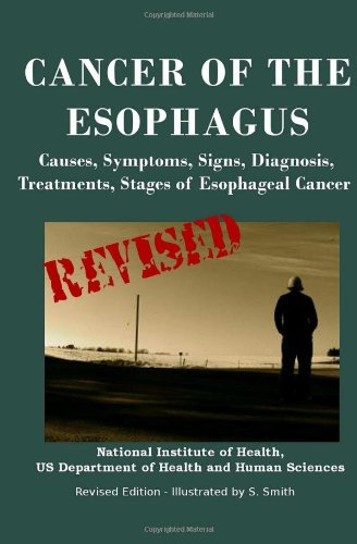 9781475005455: Cancer Of The Esophagus: Causes, Symptoms, Signs, Diagnosis, Treatments, Stages of Esophageal Cancer