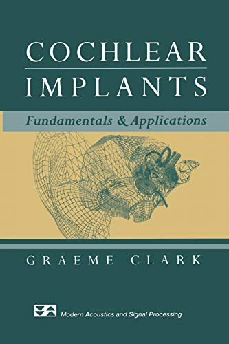 9781475779066: Cochlear Implants: Fundamentals and Applications (Modern Acoustics and Signal Processing)