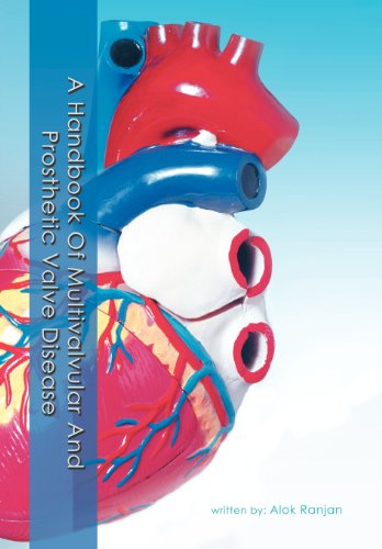 A Handbook of Multivalvular and Prosthetic Valve Disease (Hardcover): Alok Ranjan