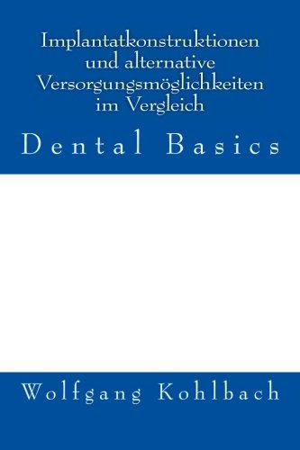 9781477516317: Implantatkonstruktionen und alternative Versorgungsm�glichkeiten im Vergleich: Dental Basics: 1