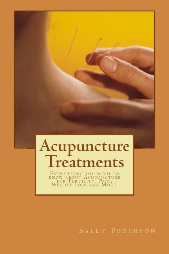 9781478209089: Acupuncture Treatments: Everything you need to know about Acupuncture for Fertility, Pain, Weight Loss and More.