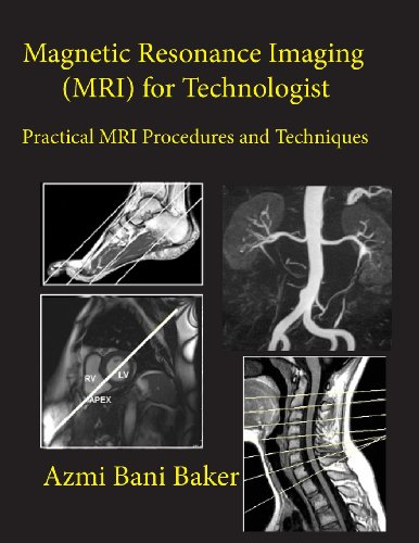 9781481117975: Magnetic Resonance Imaging (MRI) for Technologist: Practical MRI Procedures and Techniques