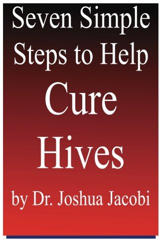 9781481979535: Seven Simple Steps to Help Cure Hives