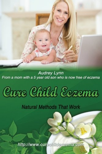 9781482010183: Cure Child Eczema: Natural Methods That Work
