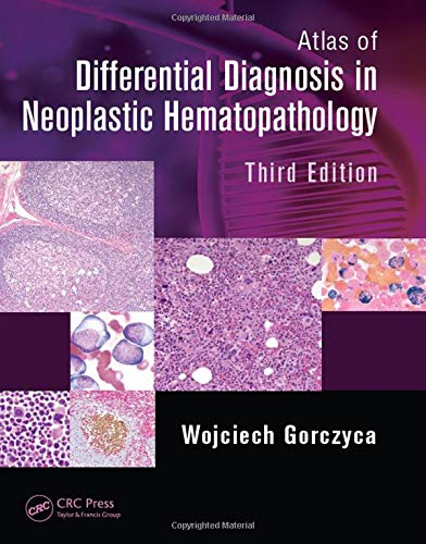 9781482212211: Atlas of Differential Diagnosis in Neoplastic Hematopathology, Third Edition