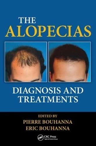 9781482212754: The Alopecias: Diagnosis and Treatments