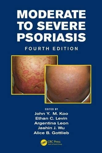 9781482215168: Moderate to Severe Psoriasis, Fourth Edition