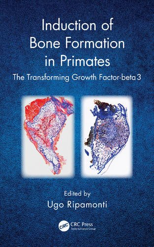 9781482216165: Induction of Bone Formation in Primates: The Transforming Growth Factor-beta 3