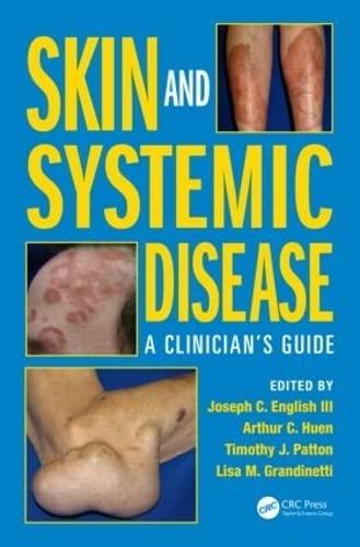 Skin and Systemic Disease: A Clinician's Guide: English III, Joseph C.; Huen, Arthur C.; ...