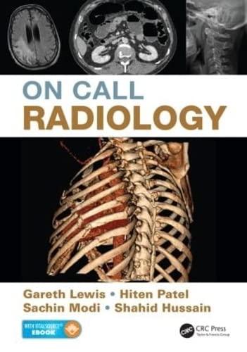 9781482221671: On Call Radiology