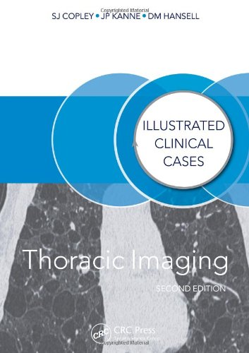 9781482231151: Thoracic Imaging: Illustrated Clinical Cases, Second Edition