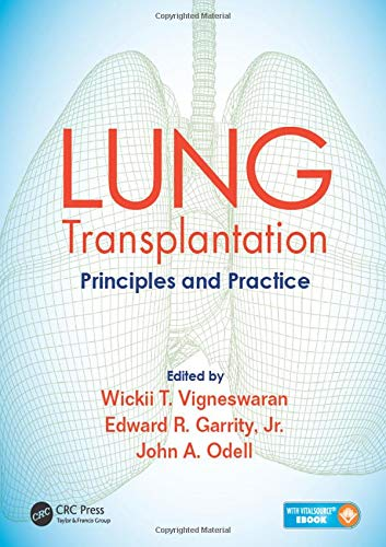 9781482233919: Lung Transplantation: Principles and Practice