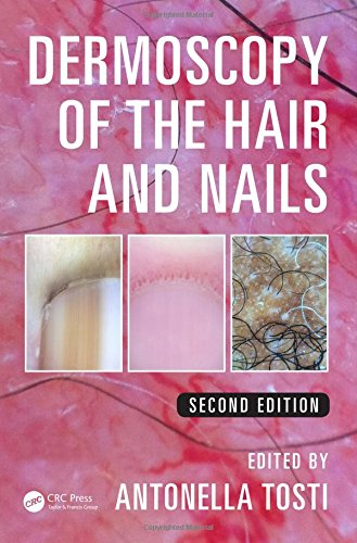 9781482234053: Dermoscopy of the Hair and Nails, Second Edition