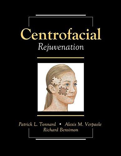 9781482259636: Centrofacial Rejuvenation