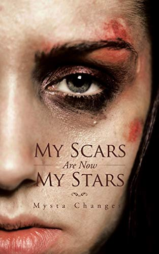 9781482807196: My Scars Are Now My Stars