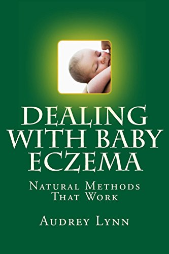 9781484844342: Dealing With Baby Eczema: Natural Methods That Work