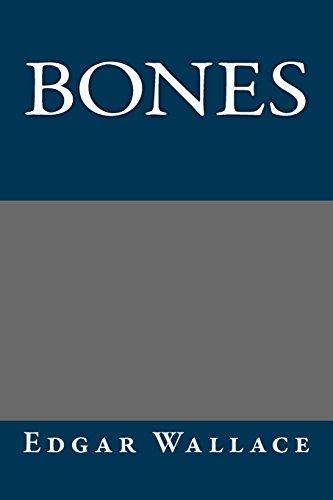 9781484863473: Bones