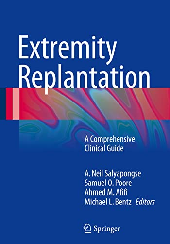 9781489975157: Extremity Replantation: A Comprehensive Clinical Guide