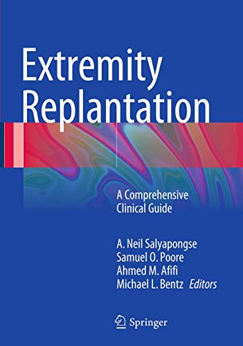 9781489979742: Extremity Replantation: A Comprehensive Clinical Guide