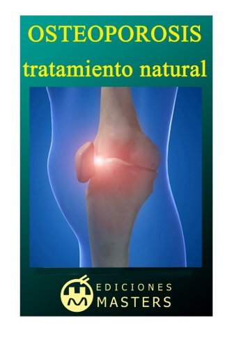 9781492709879: Osteoporosis: Tratamiento natural (Spanish Edition)