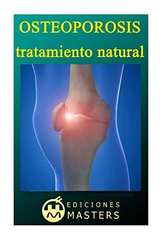 9781492709879: Osteoporosis: Tratamiento natural