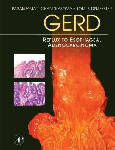 9781493300730: GERD: Reflux to Esophageal Adenocarcinoma
