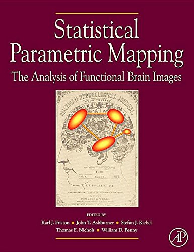 9781493300952: Statistical Parametric Mapping: The Analysis of Functional Brain Images