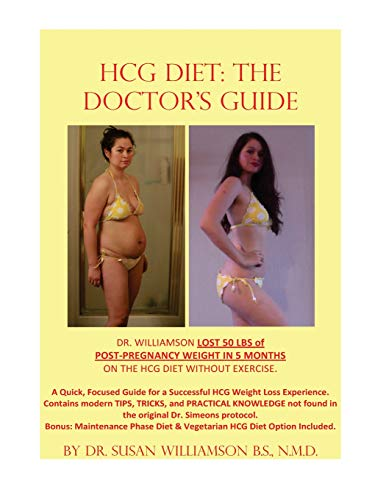 9781493698714: HCG Diet: The Doctor's Guide: A Quick, focused Guide for a successful HCG Weight loss experience. Contains modern TIPS, TRICKS, and PRACTICAL ... and Vegetarian HCG Diet Option Included.