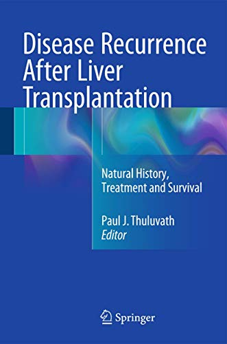 9781493929467: Disease Recurrence After Liver Transplantation: Natural History, Treatment and Survival