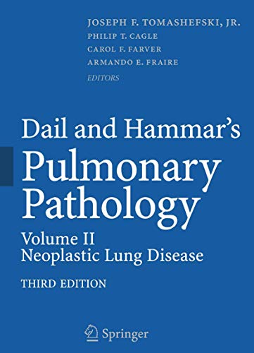 9781493936922: Dail and Hammar's Pulmonary Pathology: Volume II: Neoplastic Lung Disease: 2