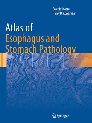 9781493942855: Atlas of Esophagus and Stomach Pathology (Atlas of Anatomic Pathology)