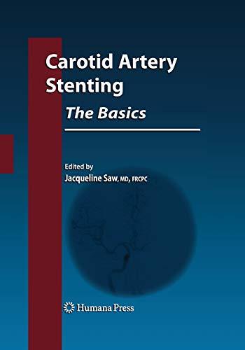 9781493956876: Carotid Artery Stenting: The Basics